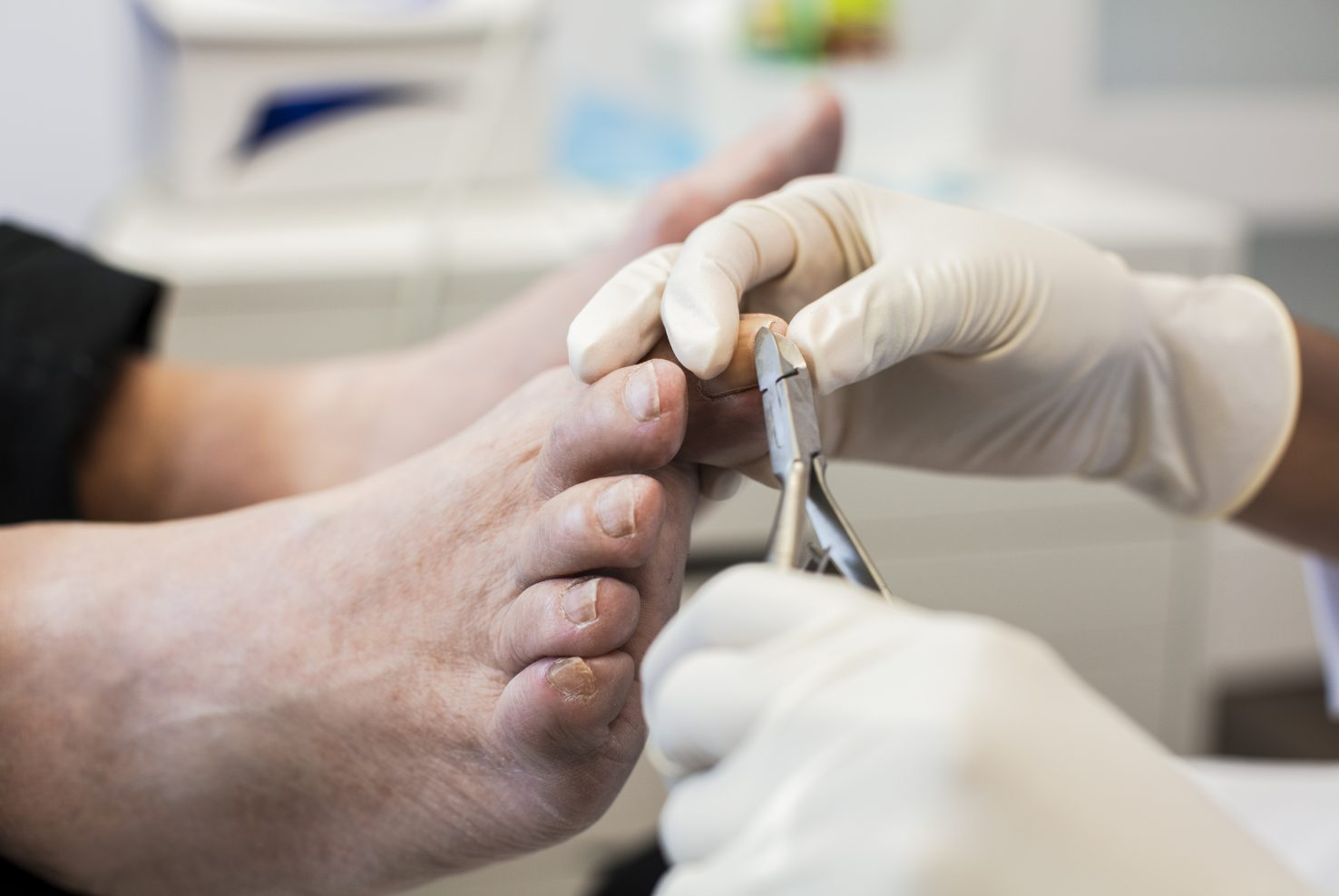 Traitements dermatologiques